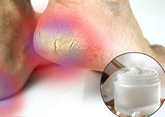 Receita contra rachadura nos pés:como fazer creme potente para secura