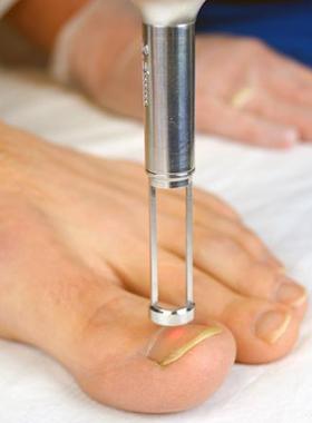 Tratamento de um fungo de pé a medicina de forma começada